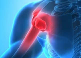 dolor musculo hueso articulacion artrosis