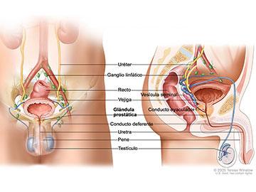 cancer prostata terapia hormonal)
